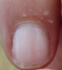 Pureit Copper water purifier Skin peeling benefit-min